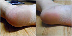 micropedi-before-and-after