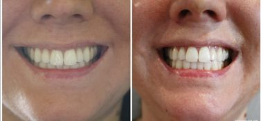 Getting My Confidence Back with Smile Brilliant Teeth Whitening + Giveaway