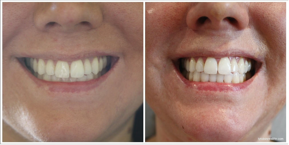 Getting My Confidence Back With Smile Brilliant Teeth Whitening Giveaway